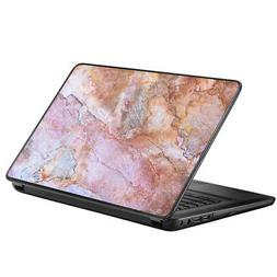 """Protective Vinyl Skin Decal for HP 2000 Laptop 15.6"""" / Rose"""